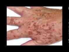 Cómo disminuir las manchas de las manos. Compartimos varios remedios caseros para ayudar a tratar las manchas de las manos.