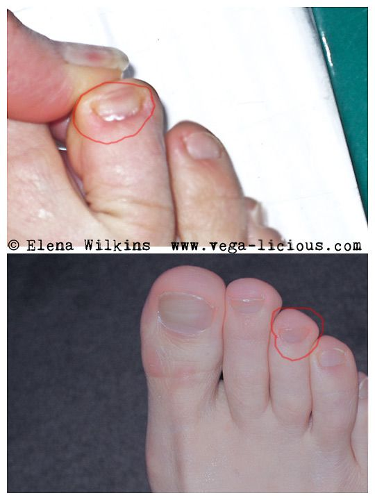 toenail fungus treatment