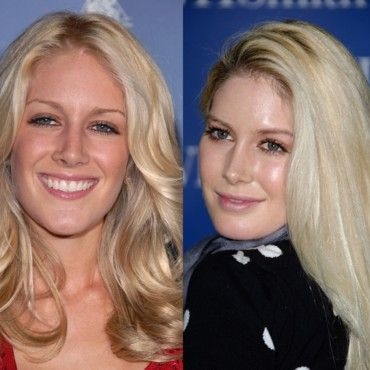 Heidi Montag avant et après chirurgie esthétique