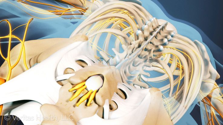 How to Sleep Better if You Have Ankylosing Spondylitis