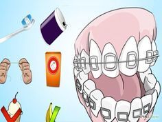 Brush Your Teeth With Braces On Step 7 Version 3.jpg