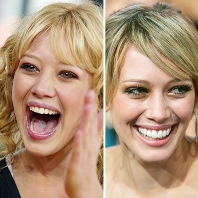 Celebrities With Dental Implants - Defacto Dentists