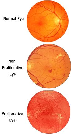 Diabetic Retinopathy Information | There are three stages of diabetic retinopathy, each characterized by ...