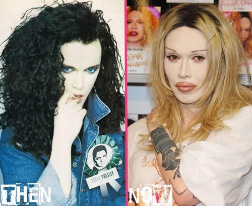 Celebrity Pete Burns Plastic Surgery Before After - http://www.celeb-surgery.com/celebrity-pete-burns-plastic-surgery-before-after/?Pinterest