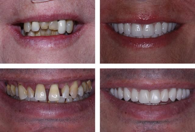 Why you should consider All-on-4 Dental Implant treatment: All on 4 patients of Prosthodontist Dr. Malkin and Periodontist Dr. Moldovan