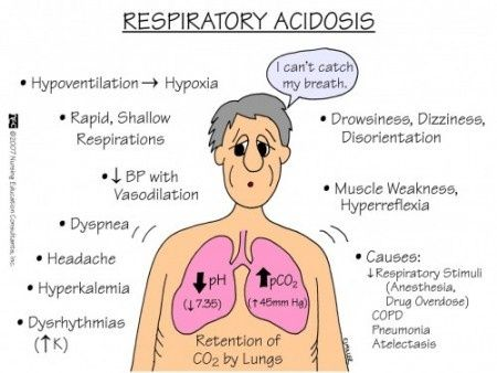 Respiratory acidosis                                                                                                                                                                                 More