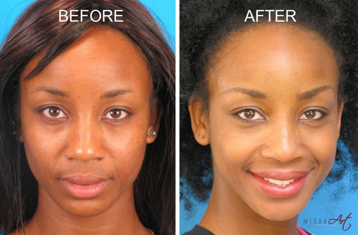 Before & After Photos of MicroArt Semi Permanent Makeup