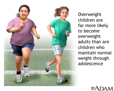 HomeoCity: Obesity