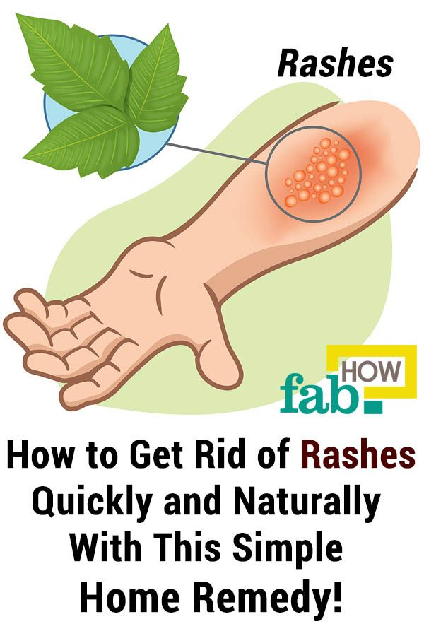 Simple Home Remedy to Get Rid of Rashes Quickly and Naturally