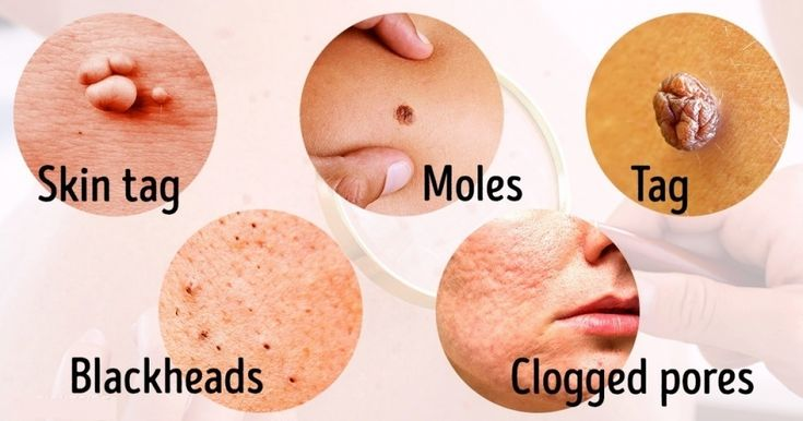 How to remove blackheads moles warts skin tags and age