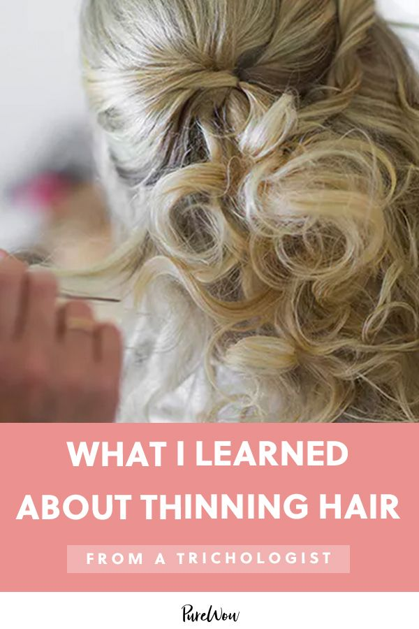 I Saw a Trichologist About My Thinning Hair Before My Wedding—Here's What I Learned