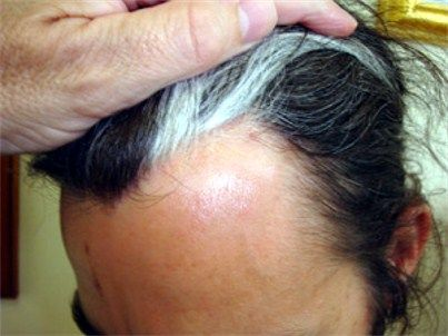 A white forelock or The Mallen Streak is caused by a defiencey known as Poliosis, a lack of compound-pigment melanin which provides colour in hair, eyebrows and eyelashes. This results in one or more white 'streaks' in hair. Poliosis is a symptom most commonly associated with Waardenburg syndrome, Marfan's syndrome and other genetic disorders.