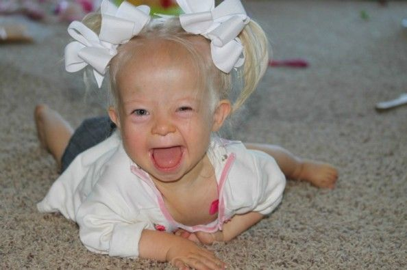 Help support Sophia Joy's angels .  Sweet little Sophia is 2 years old and was diagnosed with Down Syndrome when she was 5 days old. She currently fighting  Leukemia (AML) and is hospitalized in the ICU because her immune system is nonexistent. PLEASE DONATE & RE-PIN!! Even a small amount by many can go a long way toward helping her fight financially! God Bless YOU for your help!