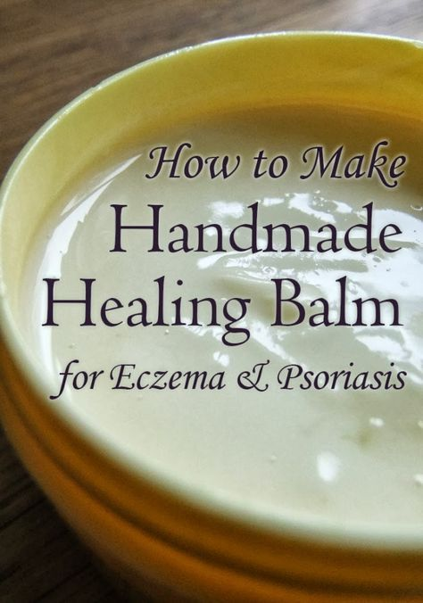 Skincare recipe for making a healing balm for Eczema & Psoriasis - all natural and the oils in the recipe help soothe inflammation, itchiness, and flakiness #eczema