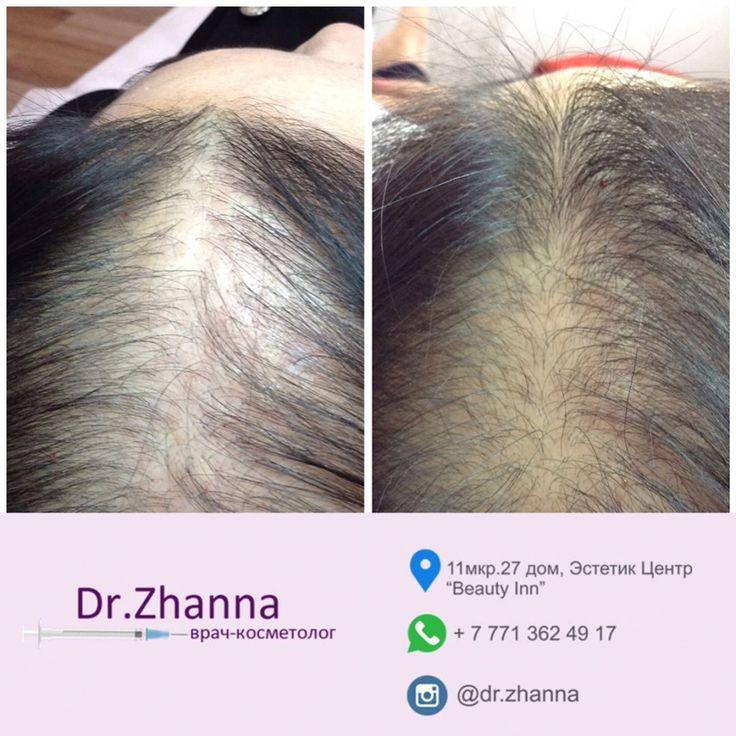 -��Процедура: лечение волосистой части головы -��Цель: восстановление роста волос -��Препарат: DR. CYJ Hair Filler -✅Преимущество:  в отличии от других процедур, например мезотерапии, которая требует 10-12 процедур с интервалом в неделю, CYJ hair filler требует лишь 4 процедуры с интервалом в 2 недели -��Результат: после рекомендуемого курса -����Анестезия: нет -⌚️Время процедуры: 30 минут -��Болезненность: не больно -❌Противопоказания: беременность, грудное вскармливание, аутоиммунные…