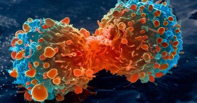 Comment faire mourir le cancer de faim en supprimant ce seul ingrédient de votre alimentation