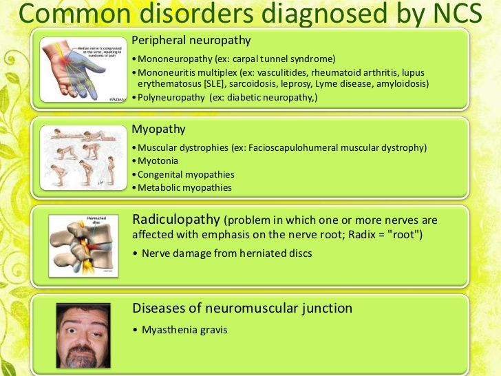 Common disorders diagnosed by NCS        Peripheral neuropathy        • Mononeuropathy (ex: carpal tunnel syndrome)       ...