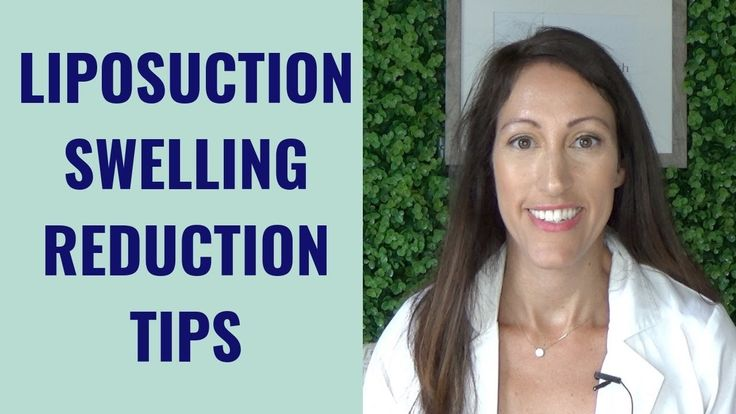Liposuction swelling reductin tips liposuction recovery