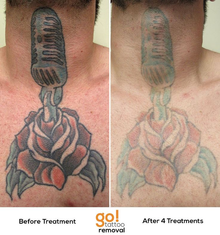 After 4 laser tattoo removal treatments we have for Ways to remove tattoos