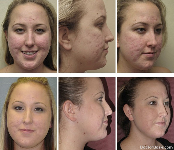Profractional Laser Peel Remove Scars Best Of Laser