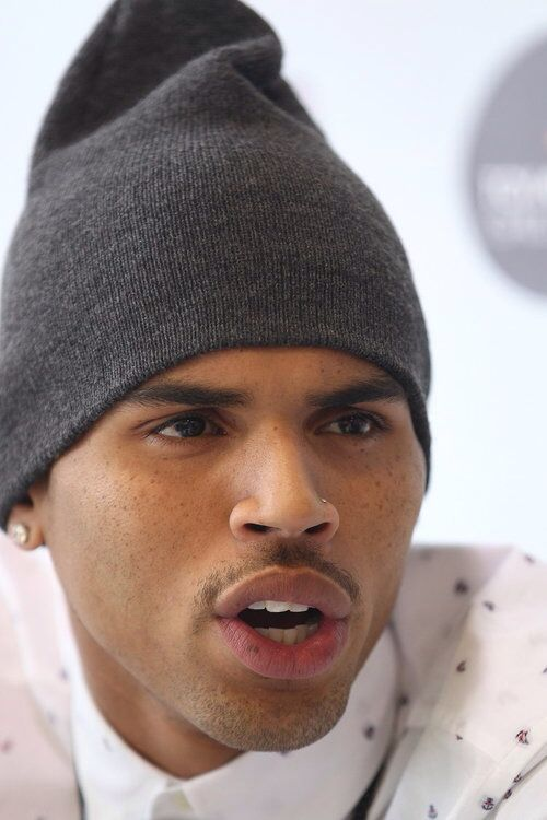 Chris Browns freckles!!