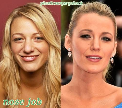 Blake Lively plastic surgery before and after nose job