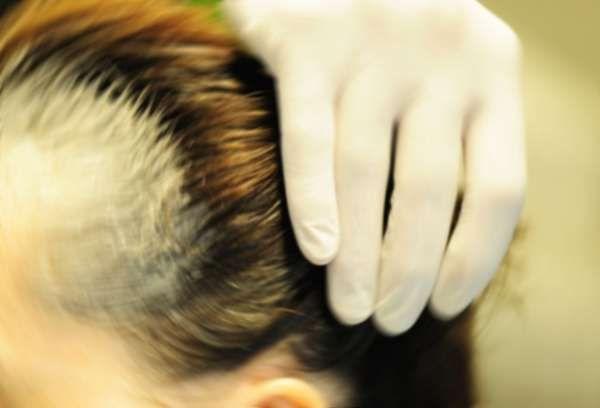 Che olio di bardana di capelli è utile