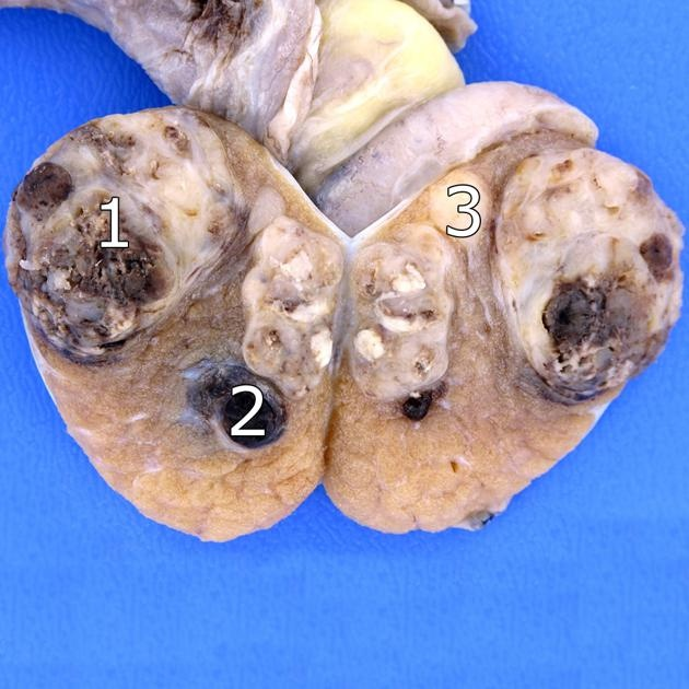 Mixed germ cell tumour of the testis 1. Embryonal cell carcinoma. 2. Teratoma. 3. Seminoma. A testicular teratoma, unlike ovarian teratoma, is often aggressive in its biological behaviour, and often exists as part of testicular mixed germ cell tumours. Mature teratomas tend to be cystic with heterogeneous echoes in the fluid representing a mixture of mucinous or sebaceous material with or without hair follicles. Read more: http://radiopaedia.org/articles/testicular-teratoma