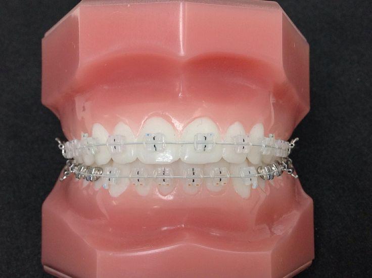 Bijna onzichtbare beugels. Door de orthodontist, de echte specialist in #beugels #orthodontie #beugelbehandeling. Jij laat je tanden toch ook alleen behandelen door een echte specialist? Www.rechtetanden.nl in Amsterdam.