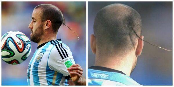Rodrigo Palacio najdziwniejsze fryzury piłkarzy #funny #smieszne #futbol #sport #sports #pilkanozna #futbol #soccer #hair #hairstyle