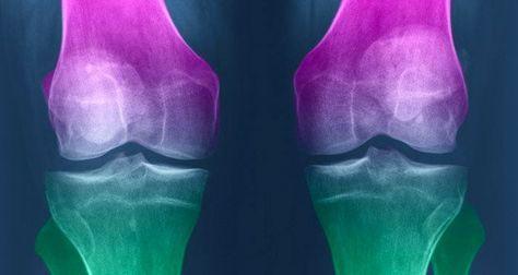 Vous souffrez de douleurs aux articulations ? Voici comment régénérer le cartilage du genou naturellement.