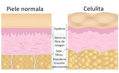 """Celulita reprezinta un proces inflamator, interesand tesutul celular subcutanat, care apare ingrosat cu formarea unor noduli mici rau delimitati de care pielea adera, luand aspectul de """"coaja de portocala""""..http://www.medpont.ro/dermato-venerologie/celulita/"""