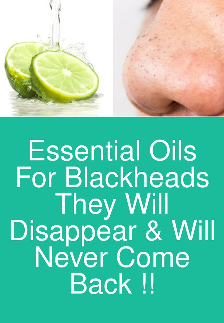 Essential Oils For Blackheads – They will disappear & will never come back !!