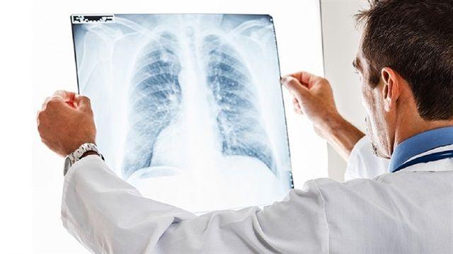 Akciğer iltihabı ölüme yol açıyor