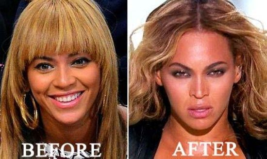 Beyonce Nose Job Before After