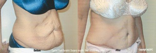 Post Bariatric Surgery #dennis #ward #md, #plastic #surgery, #cosmetic #surgery, #plastic #surgeon, #cosmetic #surgeon, #experienced, #board #certified, #orlando, #winter #park, #maitland, #altamonte #springs, #daytona #beach, #acne, #acne #scaring, #aging #skin, #blue #peel, #botox #cosmetic, #breast #augmentation, #breast #lift, #breast #lipo #reduction, #breast #reconstruction, #breast #reduction, #breast #surgery, #chemical #peels, #chin #cheek #implants, #collagen #replacement…