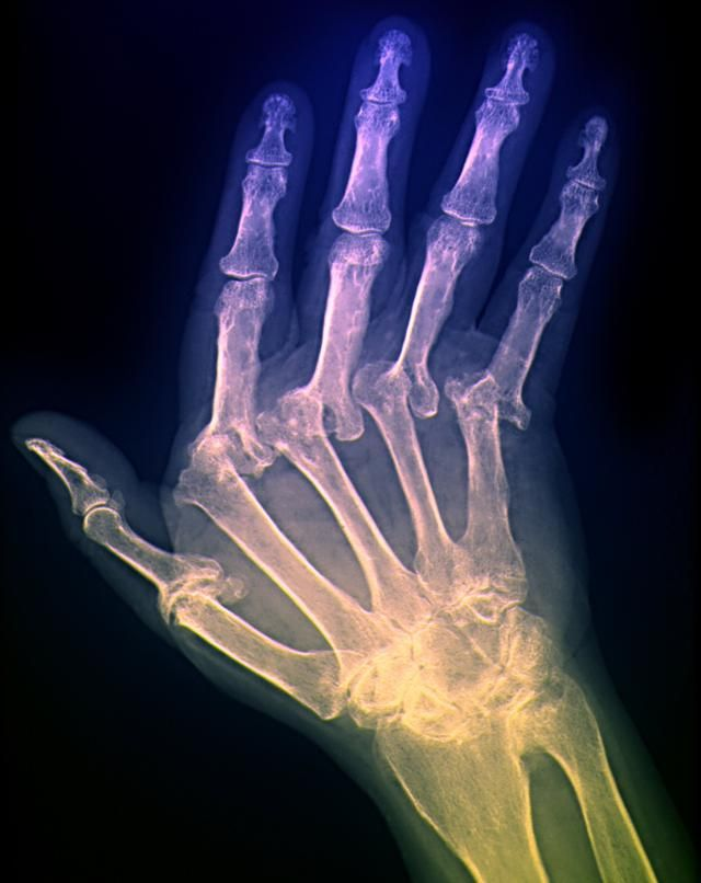 Ulnar Drift Is a Visible Characteristic of Rheumatoid Arthritis