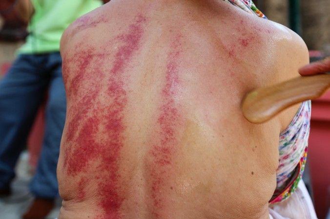Gua sha raises dark marks that can be mistaken for tissue damage. (Psisa / Shutterstock.com)