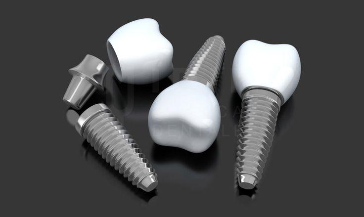 dientes en un dia