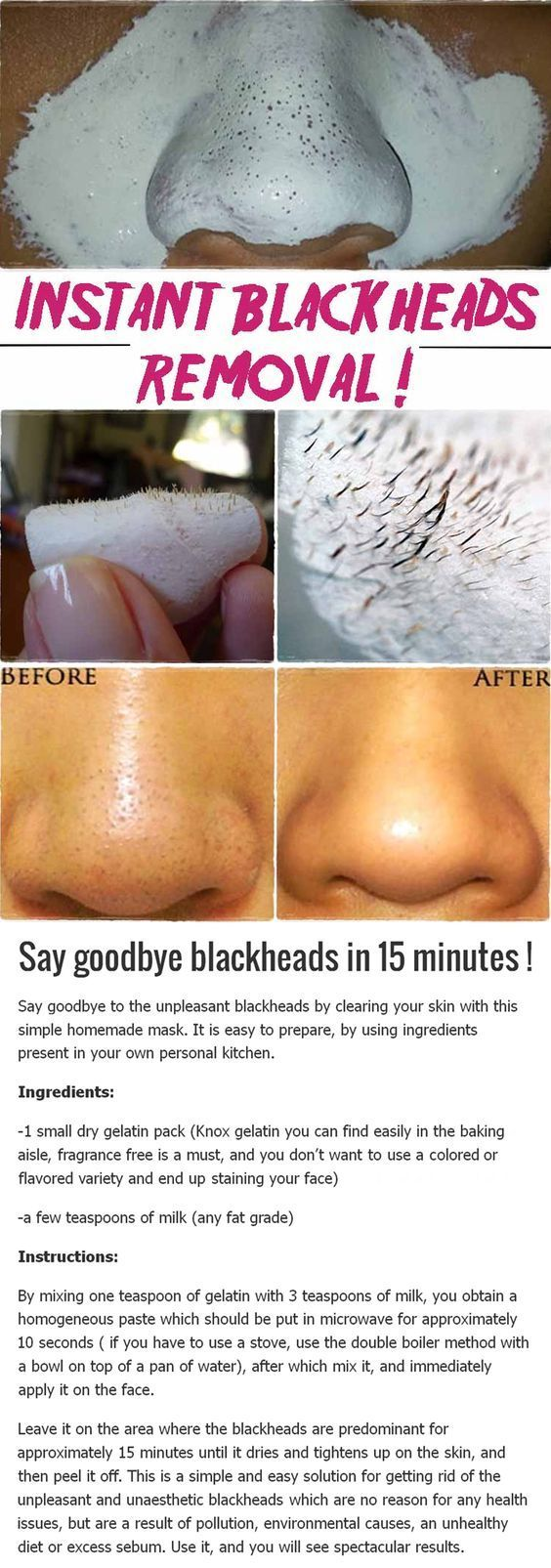SAY GOODBYE BLACKHEADS IN 15 MINUTES
