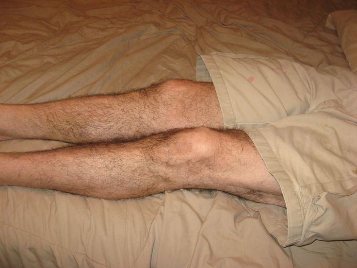 √    Restless Legs and RLS Treatment