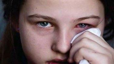 #arpacık #göz #gözhastalıkları Arpacık 'da Alınması Gereken Önlemler!