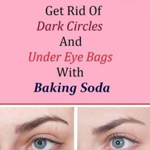 Procedure: Add 1 teaspoon of baking soda in a glass of hot water or tea and mix it well. Take a pair of cotton pads and soak them in the solution and place them under the eyes. Let it sit for 10-15 minutes, then rinse it off and apply a moisturizer. Practicing this procedure daily …
