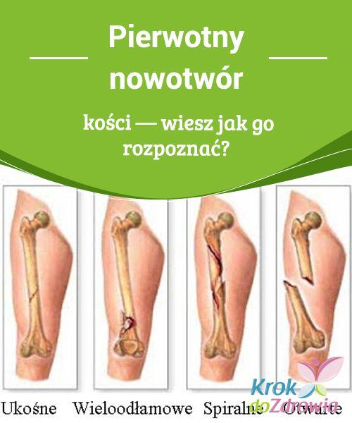 #Pierwotny nowotwór kości — #wiesz jak go rozpoznać?  W #przeciwieństwie do innych nowotworów, pierwotny rak kości, nie pojawia się w #wyniku przerzutu. #Najczęściej dotknięte obszary znajdują się w kości poniżej kolan.