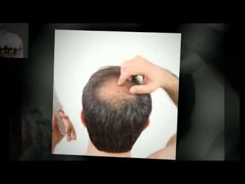 hair loss solutions+hair loss remedies - http://hairregrowthnews.com/hair-loss-solutionshair-loss-remedies/