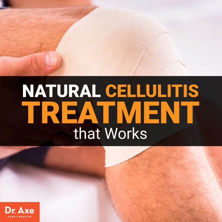 Cellulitis treatment - Dr. Axe http://www.draxe.com #health #holistic #natural