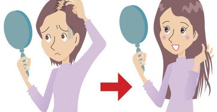 Cette femme perdait ses cheveux, elle a appliqué ceci sur le cuir chevelu avant d'aller au lit. Les résultats Fantastiques