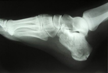 Are health IT regulations causing stress fractures?  The repeated hammering of regulations, policy changes, and non-intuitive health IT is causing fissures in the physician community.