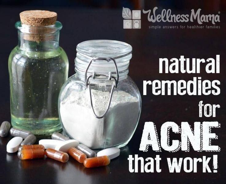 Natürliche Heilmittel für Akne