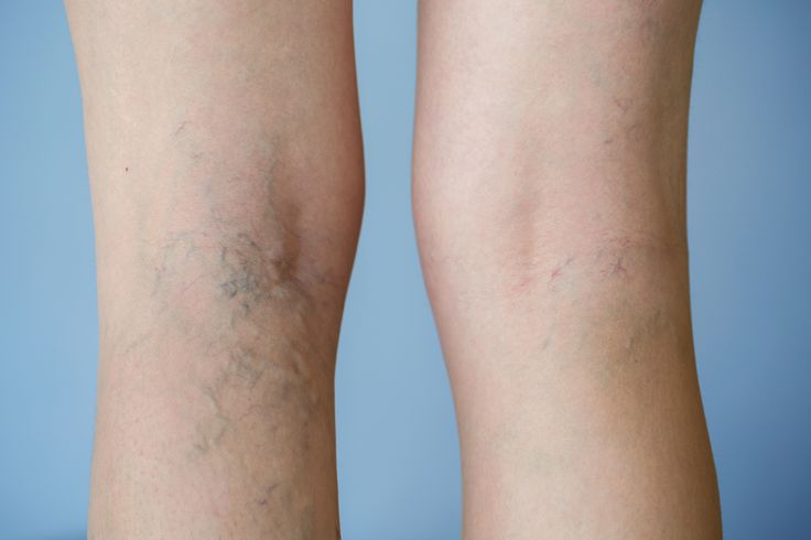 NATURAL SOLUTIONS TO VARICOSE VEINS Varicose veins are basically twisted, widened veins with incompetent valves, and although they are a long-term problem, symptoms can come and go. COMMON SIGNS AND SYMPTOMS  Common signs and symptoms may include throbbing, aching, cramping, swelling or a general heavy feeling or restlessness in the lower legs, especially after prolonged standing or sitting. Please refer to Natural Medicine Magazine's September edition to find the full article… Dr. Sandi Nye